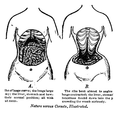 truth about waist trainers